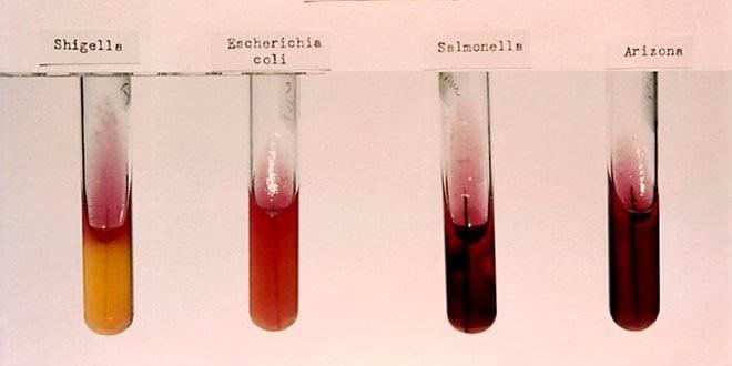 Salmonelosis Muestras Laboratorio